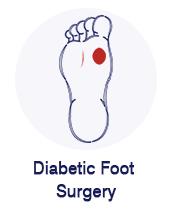 Diabetic Foot Surgery
