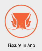 fissure-in-ano